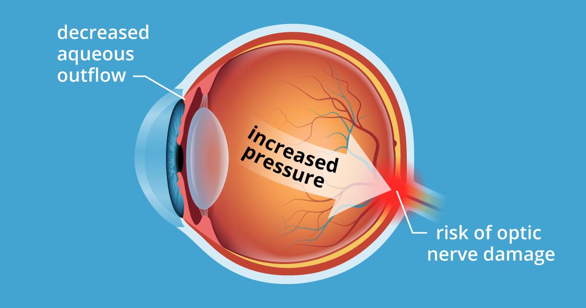 Ocular Hypertension: 5 Causes of High Eye Pressure